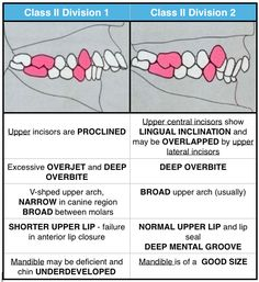 Class II Malocclusion has 2 subtypes to describe the position of anterior teeth: • Class II Division 1: The molar relationships are like that of Class II and the maxillary anterior teeth are protruded. Teeth are proclaimed and a large overjet is present. • Class II Division 2: The molar relationships are Class II where the maxillary central incisors are retroclined. The maxillary lateral incisor teeth may be proclaimed or normally inclined. Retroclined and a deep overbite exists.