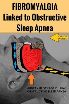Stop Snoring Remedies-Tips - Fibromyalgia is frequent issue for obstructive sleep apnea patients - The Easy, 3 Minutes Exercises That Completely Cured My Horrendous Snoring And Sleep Apnea And Have Since Helped Thousands Of People – The Very First Night! Home Remedies For Snoring, Sleep Apnea Remedies, Insomnia Remedies, What Causes Sleep Apnea, Causes Of Sleep Apnea, Fatigue Causes, Chronic Fatigue, Chronic Pain, Chronic Illness