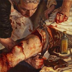 In this vivid painting by Christopher Fisher, you can see a surgeon using a falciform amputation knife. The curved blade was common in the early decades of the 19th century when surgeons preferred to cut through the skin and muscle before amputating the bone. To do this, the surgeon would take the falciform knife, hook it around the injured or infected limb, and cut in a circle to separate the flesh and muscle from the bone. Afterwards, he would use a saw to cut off the remaining appendage.