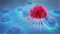 The worldwide clinical trial report 2019 Metastatic Ovarian Cancer Clinical Trials Research supplies full checklist of trials accomplished, ongoing and deliberate for Metastatic Ovarian Most cancers. It presents indepth evaluation of Metastatic Ovarian Dna E Rna, Le Psoriasis, Health Site, Lung Cancer, Cancer Cells, Breast Cancer, Cancer Sign, Types Of Cancers, Cancer Types