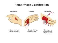 Hemorrhaging Blood Vessels