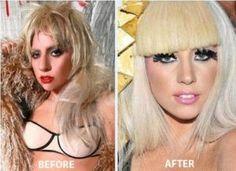 Lady Gaga Plastic Surgery Lady Gaga Opens Up About Plastic Surgery Truth And Lies Lady Gaga Before And After Lady Gaga Plastic Surgery Gone Bad Photos