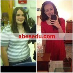 Gallbladder Surgery Weight Loss