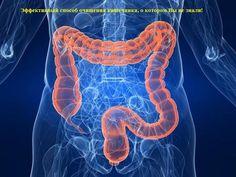 Очищение прямой кишки от слизи, фекалий, паразитов и вредных токсинов — лучший способ избежать различных заболеваний!