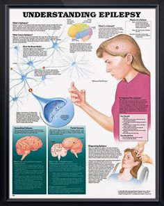 Understanding Epilepsy anatomy poster shows brain activity and defines the main forms of generalized and partial seizures. Neurology for doctors and nurses.