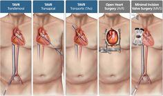 TAVR: Aortic Valve Replacement Option