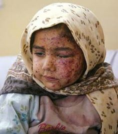 Image from http://www.thepeoplesvoice.org/TPV3/media/blogs/blog/23/afgan_child_injured_by_us.jpg.