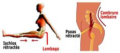ischios jambiers et psoas raccourcis saont les causes de cambrures et douleurs lombaires