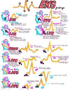 Important EKG findings!