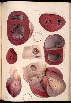 Hypertrophic cardiomyopathy, arteriosclerosis. Plate II. Pathological anatomy. Carswell, Robert, Sir, 1793-1857. London, 1838.