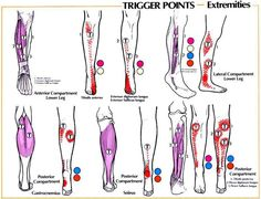 Trigger Points - Extremities