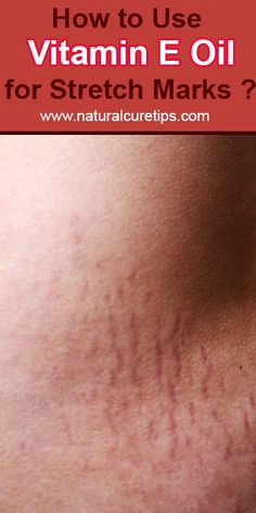 How to Use Vitamin E Oil for Stretch Marks