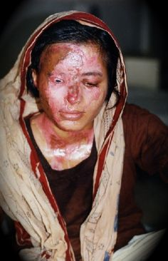 Akriti Rai, 22, was attacked by her husband, a Nepali soldier.