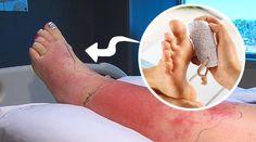 Mulher é internada com infecção grave após pedicure lixar seu pé com pedra-pomes - Bolsa de Mulher