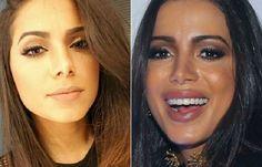 As celebridades que exageraram ao colocar botox