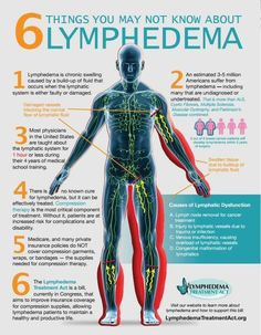 #lymphedema 6 things need to know about lymphedema.