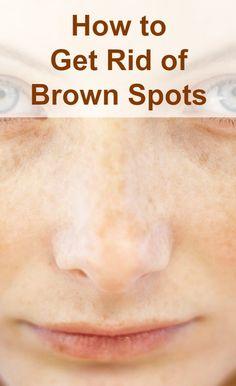 Brown-Spots