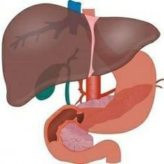 Cirrhosis of liver is characterized by large amount of scar tissue growth on the liver.