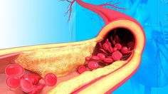 How To Clean Your Arteries Using One Simple Fruit Clogged Arteries, Cardiovascular Disease, High Blood Pressure, Health And Nutrition, Cleaning, Fruit, Simple, Ethnic Recipes, Blog