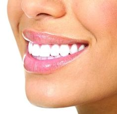 Avoiding Sensitive Teeth After Whitening