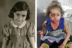 In 1941, Anne Frank's fate was sealed by a callous fear of refugees, writes Nicholas Kristof. Sound familiar? (Photograph: Anne Frank, left. At right, Rouwaida Hanoun, a Syrian 5-year-old who was wounded during an airstrike on Aleppo last week. Credit Left, Anne Frank Fonds — Basel, via Getty Images)