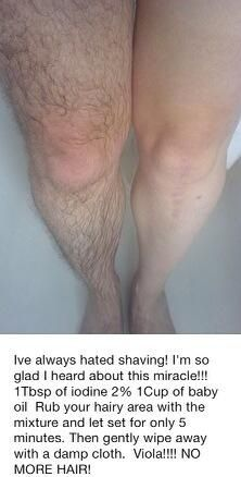 Shaveless hair removal