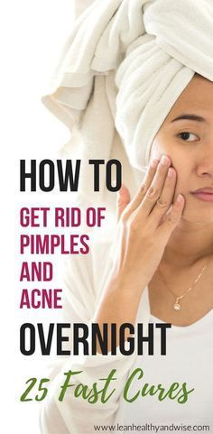 Suffering from stubborn acne and pimples? Discover fast and safe methods to get rid of of annoying pimples and acne virtually overnight. via @leanhealthywise