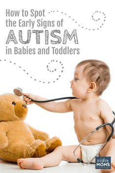 Kids With Autism Quick To Detect Motion >> 7 Best Early Signs Of Autism Images Autism Resources Children