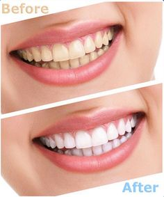 Are your teeth becoming yellowed or discolored? Read https://www.facebook.com/Prestige.Dental.Implant.Center/photos/a.394260047341636.1073741828.389523447815296/657723240995314/?type=1&theater  #teethwhitening #teethwhiteningtreatments