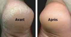 Astuce naturelle pour traiter les pieds secs et fendillés – Les astuces de Grand- Mère