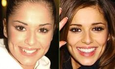 cheryl cole teeth before and after