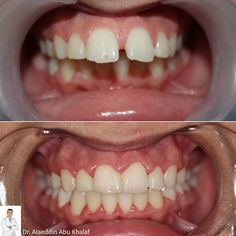 ***Front Shot*** Dr. Alaeddin Abu Khalaf @aldin20  treated  Ms. Fatima for 18 months without any tooth extraction. He let her used new orthodontic appliances. Ms. Fatima was so patient and cooperative that it gave an amazing result.  To book an appointment with Dr. Alaa, please call us on 17131123.  #qatar #ksa #kuwait #uae #emirates #dubai #oman #lebanon #germany #jordan #usa #bahrain #bahrainclinic #bahraindental #dental #dentalclinic #specialists #dentist #smile #cosmetic #emax #veneer…