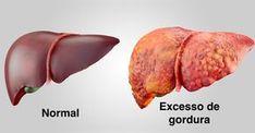 Seguir regularmente a dieta para gordura no fígado é uma das melhores e mais saudáveis formas de tratar e eliminar os sintomas de gordura no fígado,...
