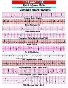 picture relating to Printable Ekg Strips named 93 Easiest EKG Interpretation shots Nursing, Nursing