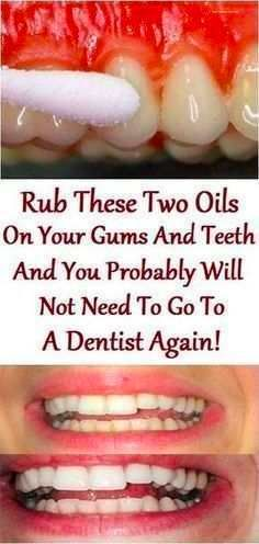 Rub These Two Oils On Your Gums And Teeth And You Probably Will Not Need To! – BS/U