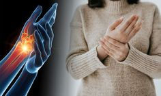 Arthritis symptoms: The four most common signs you have the health condition Inflammatory Arthritis, Arthritis Symptoms, Gout Relief, Different Types Of Arthritis, Arthritis Foundation, Body Joints, Uric Acid, Most Common, Medical Prescription