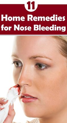 Top 11 Home Remedies for Nose Bleeding..