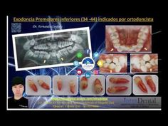 Exodoncia de premolares indicado para ortodoncia Dental Extraction