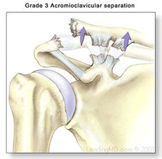 Grade I - A slight displacement of the joint. The acromioclavicular ligament may be stretched or partially torn. This is the most common type of injury to the AC joint. Shoulder Injuries, Athletic Training, Sports Medicine, Clinic, Cards, Occupational Therapy, Surgery, Bones, Wellness