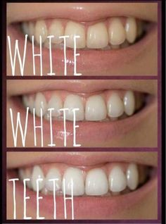 Lightens teeth without peroxide while helping to prevent cavities. Nuskin Toothpaste, Ap 24, How To Prevent Cavities, Nu Skin, Healthy Teeth, White Teeth, Face Care, Business Marketing, Business Ideas