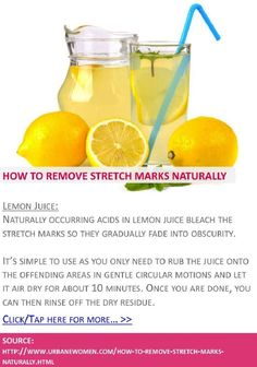 10 Natural Ways To Remove Stretch Marks