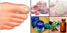 Do This One Unusual Trick Before Work To Melt Away Pounds of Belly Fat Health Remedies, Home Remedies, Natural Remedies, Beauty Care, Beauty Hacks, Ovarian Cyst Treatment, Snoring Remedies, Manicure E Pedicure, Natural Cosmetics