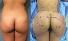 Buttock augmentation in this Cambodian American female performed by Daniel Delvecchio, world-renowned fat transplantation surgeon. www.bocabutts.com