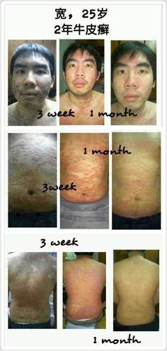 This is a 25 yr old young man who contacted the Psoriasis condition when he was serving in the army and it affected his confidence level greatly especially in meeting people. After he started taking AgeLOC R2, g3 & Marine Omega for sometime, his skin condition improved, the swelling and itchiness has gone and he gained back his confidence again.