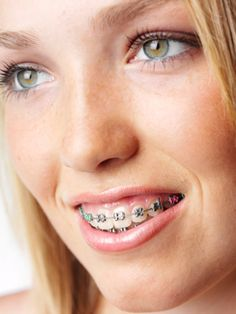 Yong blonde teenager with braces