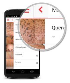 Una app española para autoexplorarse la piel