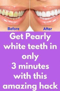 Get Pearly white teeth in only 3 minutes with this amazing hack To whiten your teeth home, in 3 minutes, instead of visit the dentist, use one of the . Teeth Whitening Remedies, Natural Teeth Whitening, Whitening Kit, Skin Whitening, Teeth Whiting At Home, Make Teeth Whiter, Clean Teeth, Baking Soda Teeth, Baking Soda Scrub