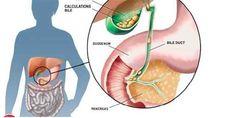 Er is een oude methode die kan helpen bij het voorkomen van ernstige ziekten. De Chinese Werkwijze van galstenen uitwerpen van de galblaas door de dikke darm is populair in Azië en het wordt aangen…