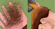 4 Remedies for Thicker Hair - Everyday Remedy Hair Remedies For Growth, Hair Loss Remedies, Hair Growth, Long Natural Hair, Natural Life, Natural Hair Styles, Cortes Bob, Hair Loss Causes, Hair Restoration
