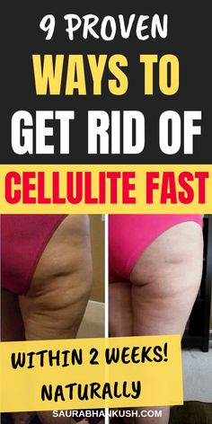 Who want Effective Ways to Get rid of Cellulite fast? Listing 9 Ways How to get rid of cellulite on legs fast. We cover cellulite remedies & home remedies to remove cellulite fast. So if you have this issue learn how to get rid of cellulite fast. Thigh Cellulite, Causes Of Cellulite, Cellulite Exercises, Cellulite Cream, Cellulite Remedies, Reduce Cellulite, Anti Cellulite, Stomach Exercises, Leg Exercises